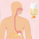 Nutrição Enteral Domiciliar: o que você precisa saber